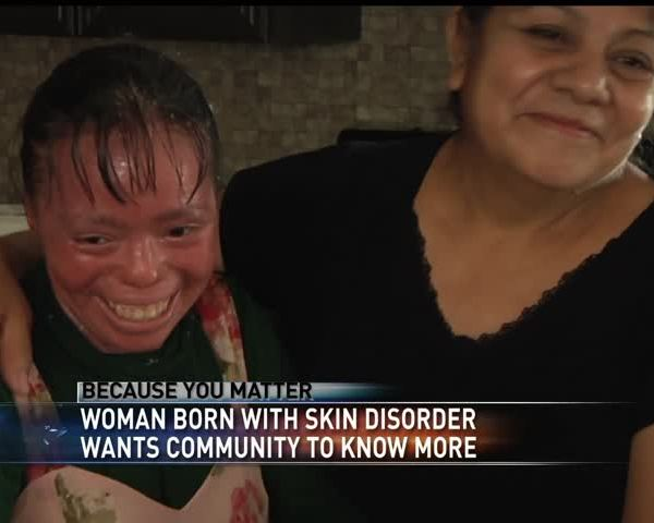 Because You Matter- Ichthyosis_95424315-159532