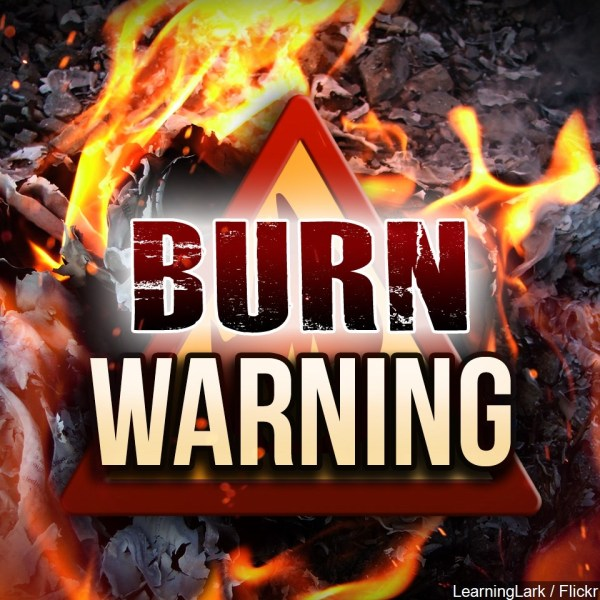 burn warning_1470779146338.jpg